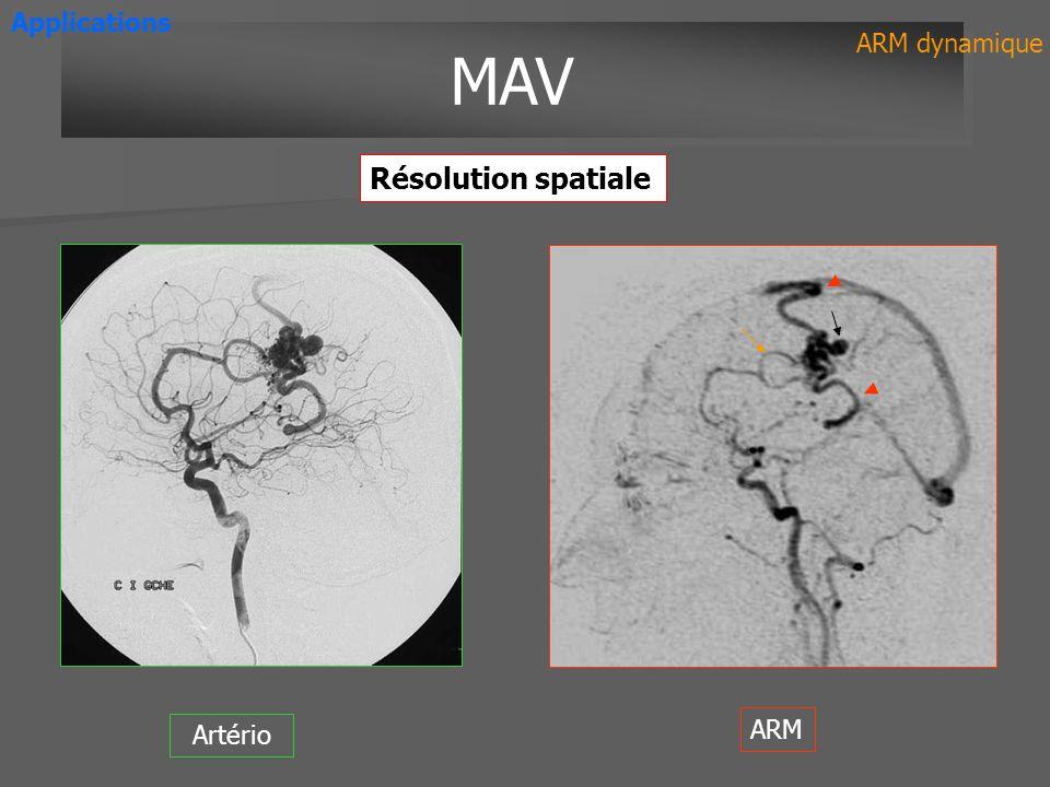 Applications MAV ARM dynamique Résolution spatiale Artério ARM
