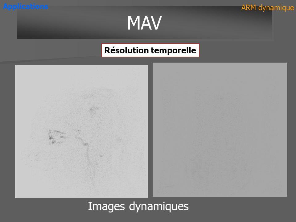 Applications ARM dynamique MAV Résolution temporelle Images dynamiques