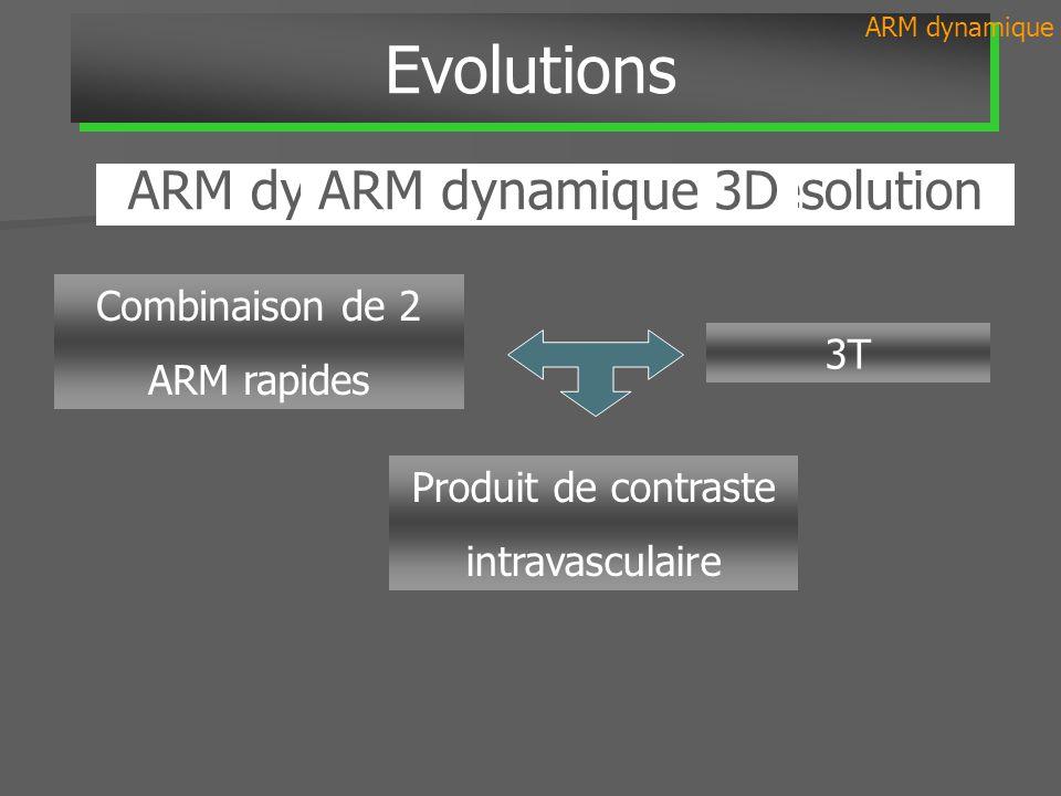 ARM dynamique 3D haute résolution