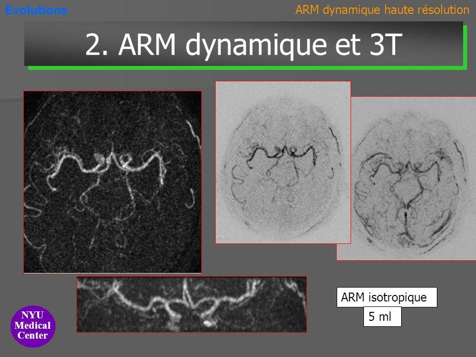 2. ARM dynamique et 3T Evolutions ARM dynamique haute résolution