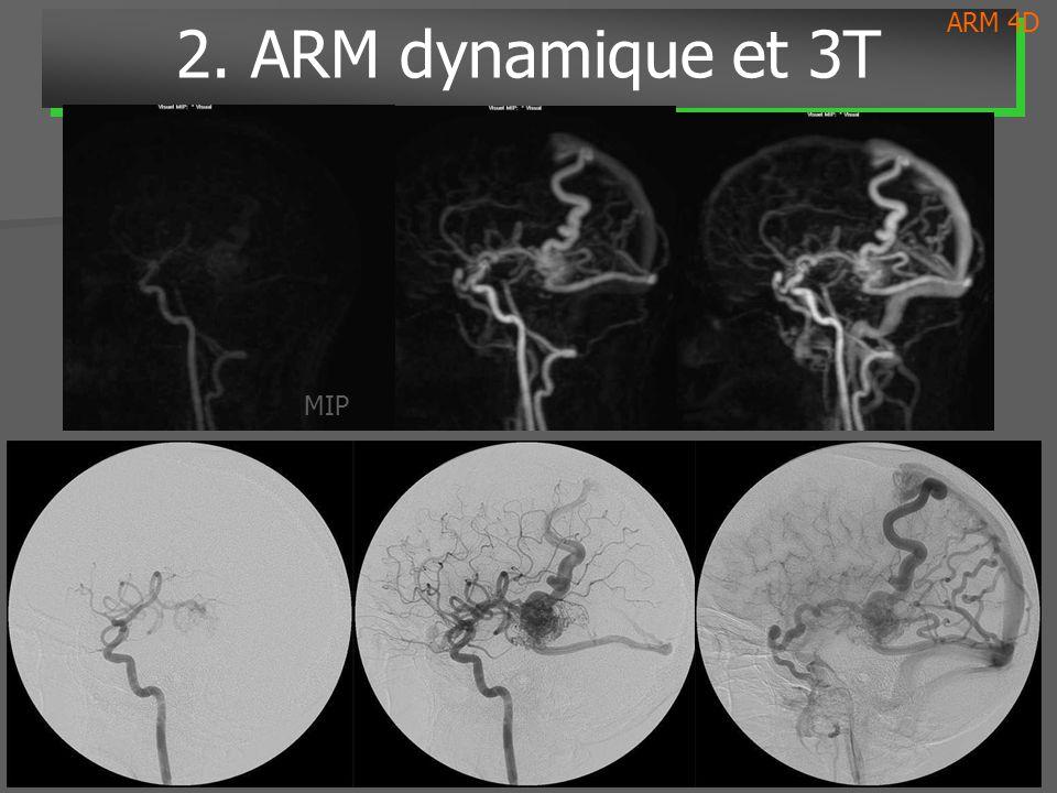 ARM 4D 2. ARM dynamique et 3T MIP