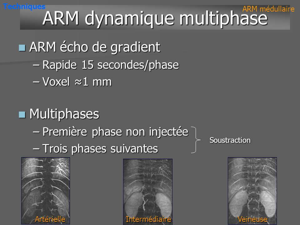 ARM dynamique multiphase