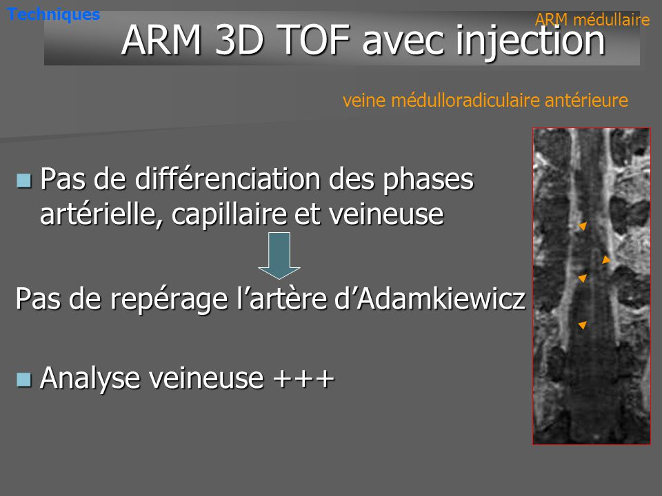 ARM 3D TOF avec injection
