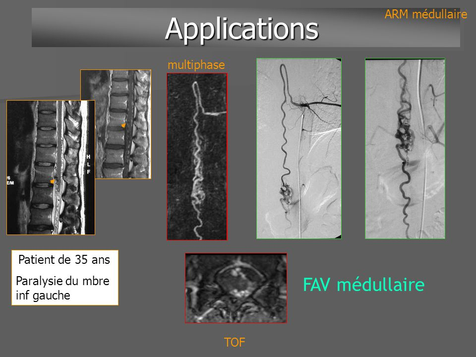 Applications FAV médullaire ARM médullaire multiphase