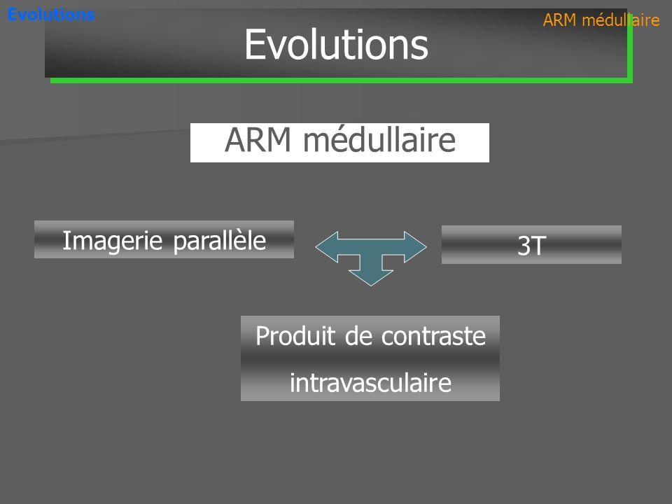 Evolutions ARM médullaire Imagerie parallèle 3T Produit de contraste