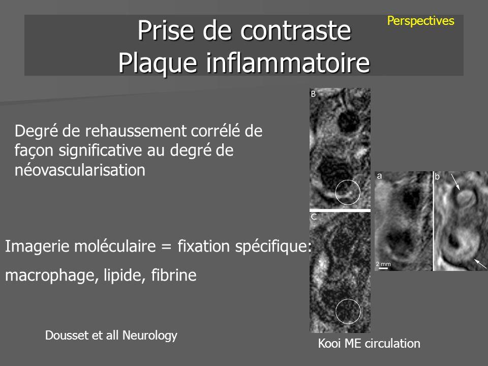 Prise de contraste Plaque inflammatoire
