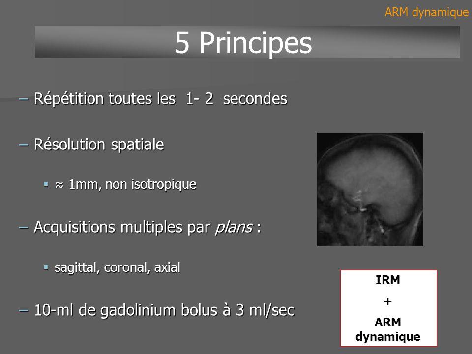 5 Principes Répétition toutes les 1- 2 secondes Résolution spatiale