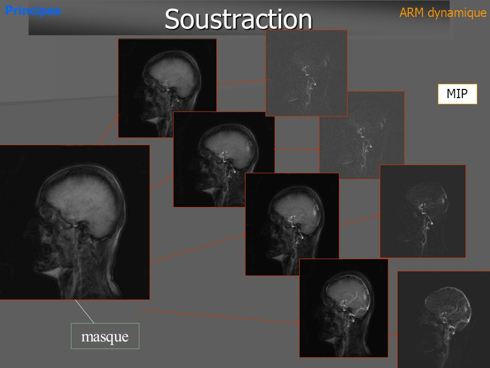 Principes Soustraction ARM dynamique MIP masque