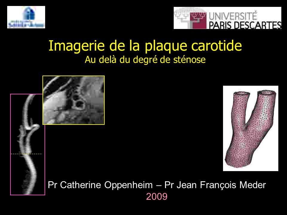 Imagerie de la plaque carotide Au delà du degré de sténose