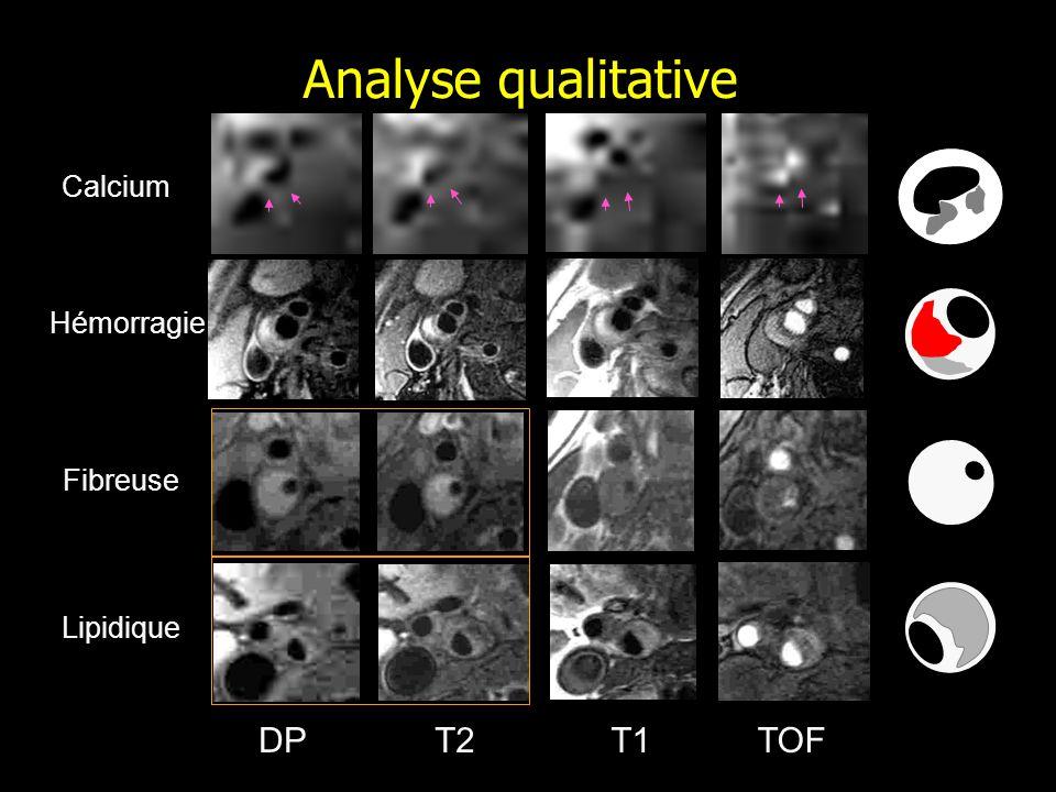Analyse qualitative Calcium Hémorragie Fibreuse Lipidique DP T2 T1 TOF