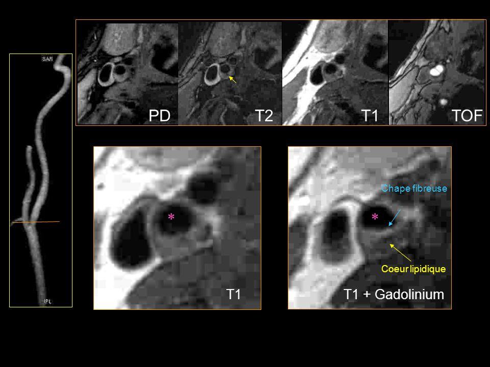 PD T2 T1 TOF Chape fibreuse * * Coeur lipidique T1 T1 + Gadolinium