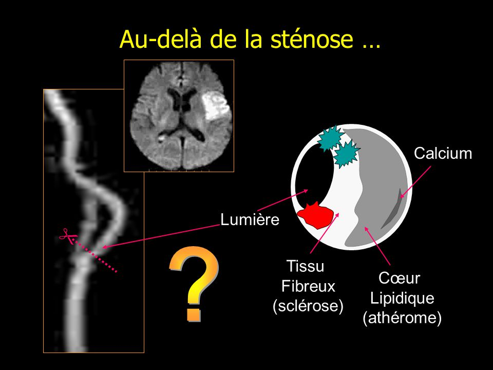 Au-delà de la sténose … Calcium Lumière  Tissu Fibreux Cœur