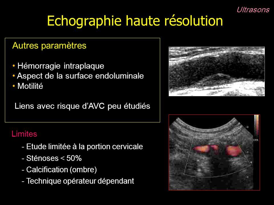 Echographie haute résolution