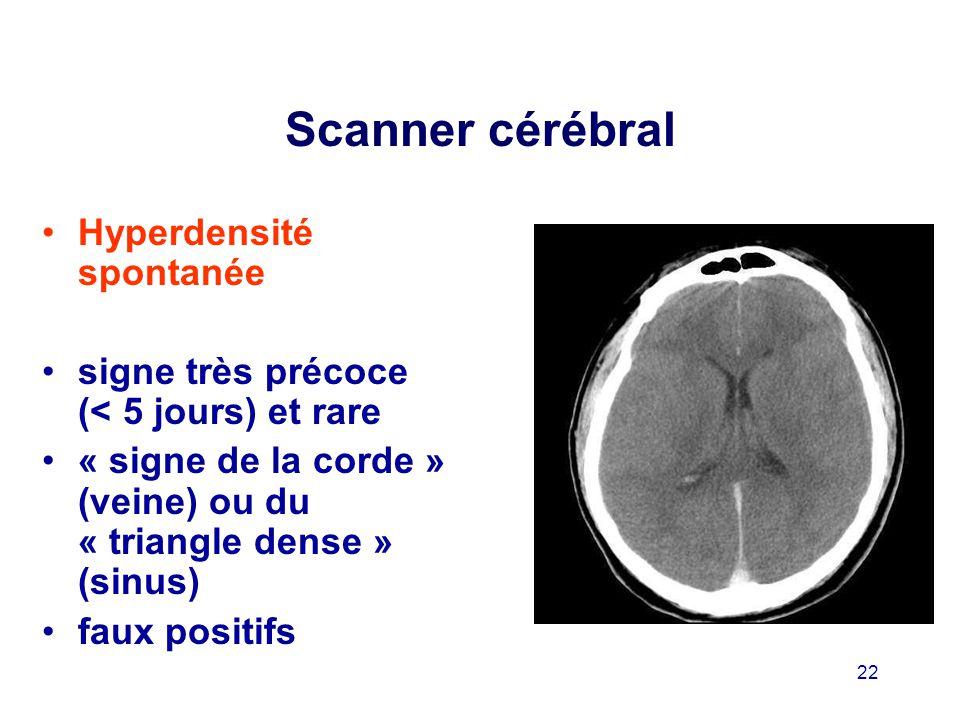 Scanner cérébral Hyperdensité spontanée