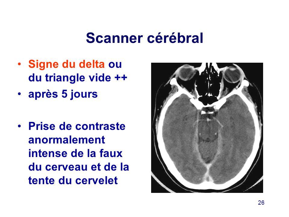 Scanner cérébral Signe du delta ou du triangle vide ++ après 5 jours