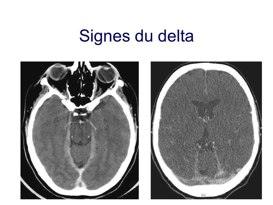 Signes du delta