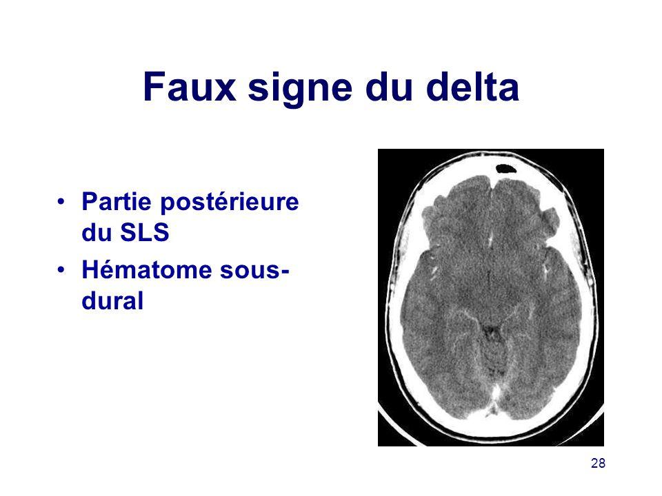 Faux signe du delta Partie postérieure du SLS Hématome sous-dural