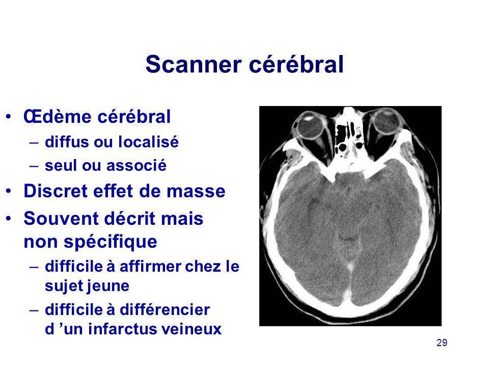 Scanner cérébral Œdème cérébral Discret effet de masse