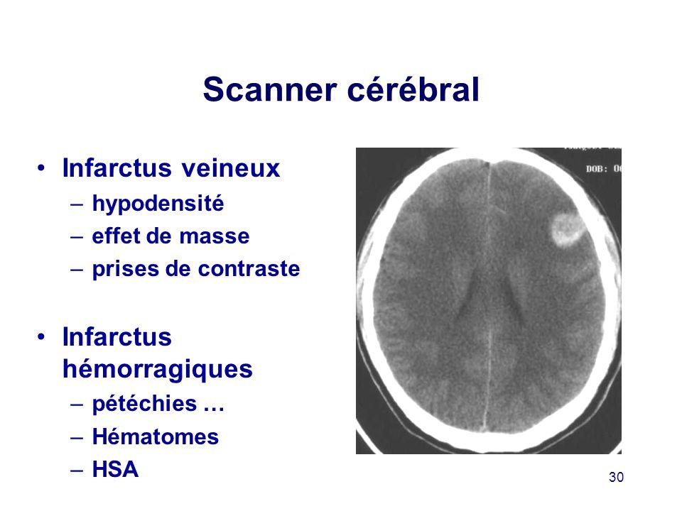Scanner cérébral Infarctus veineux Infarctus hémorragiques hypodensité