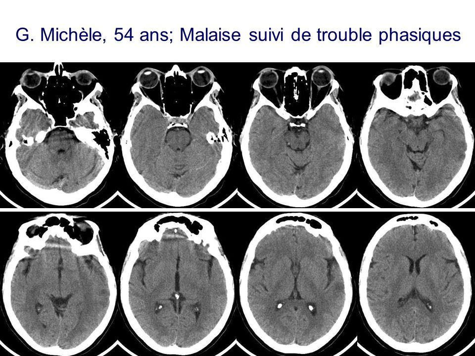 G. Michèle, 54 ans; Malaise suivi de trouble phasiques