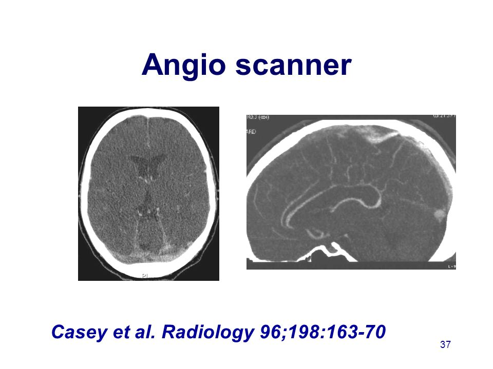 Angio scanner Casey et al. Radiology 96;198:163-70