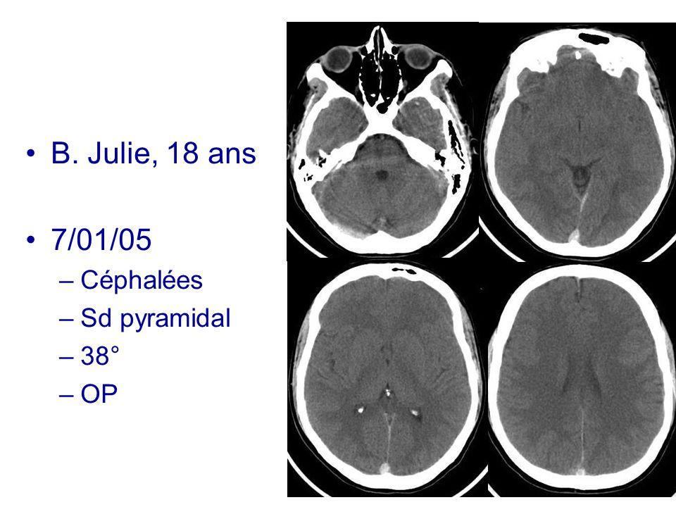 B. Julie, 18 ans 7/01/05 Céphalées Sd pyramidal 38° OP