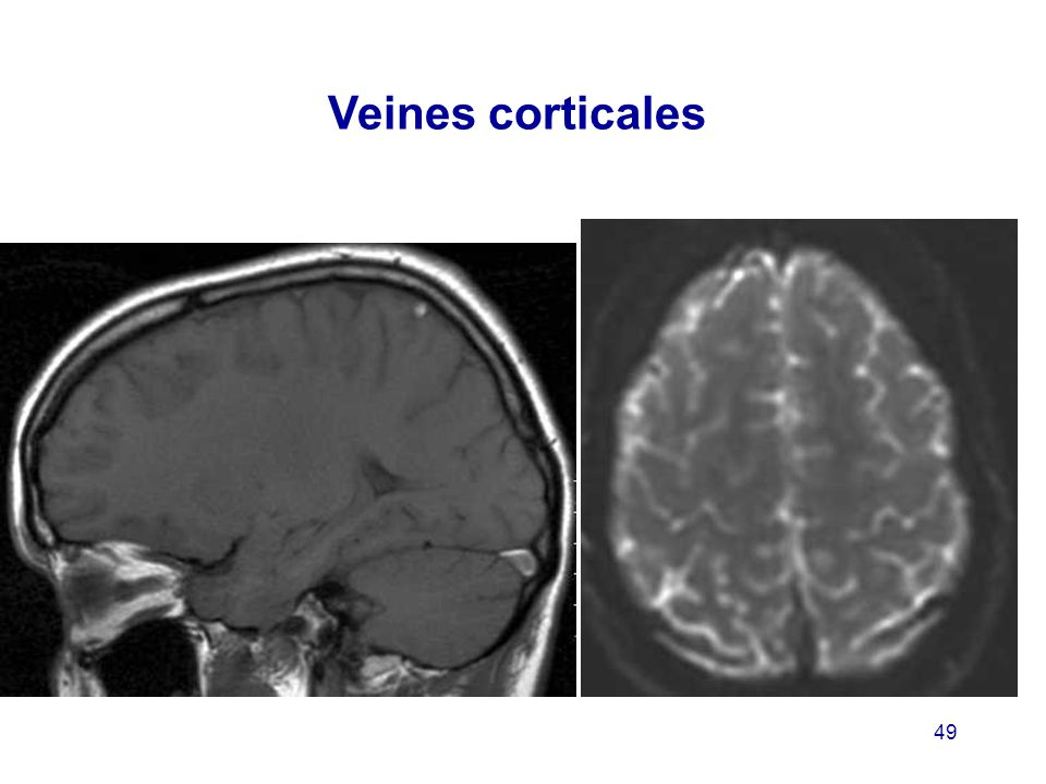 Veines corticales