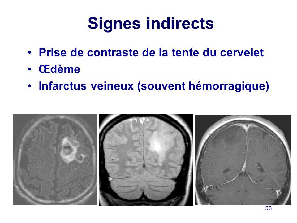 Signes indirects Prise de contraste de la tente du cervelet Œdème