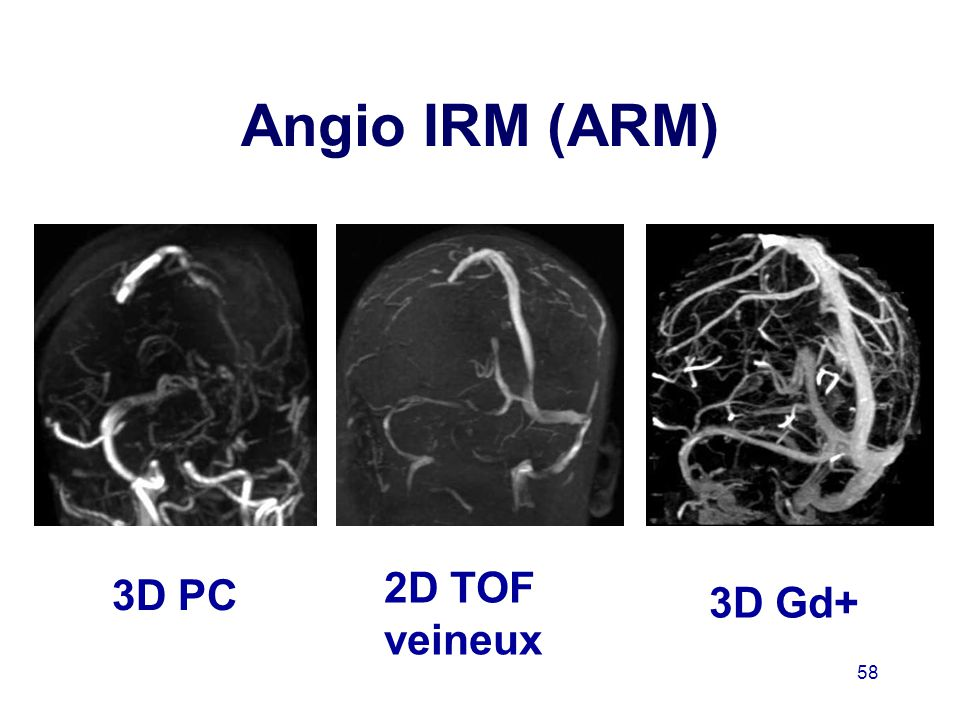 Angio IRM (ARM) 2D TOF veineux 3D PC 3D Gd+