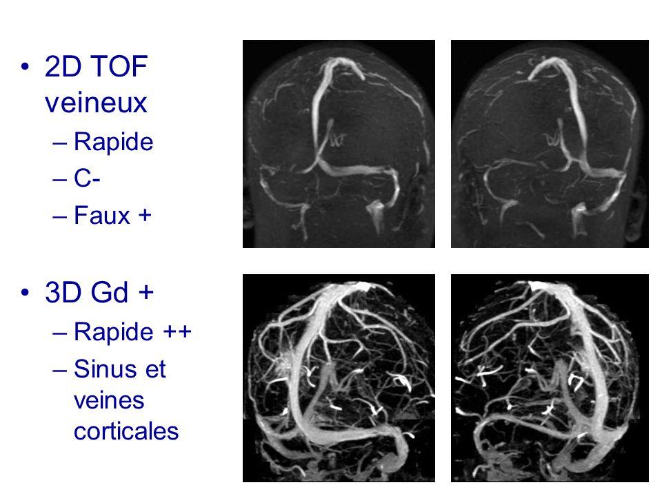 2D TOF veineux 3D Gd + Rapide C- Faux + Rapide ++