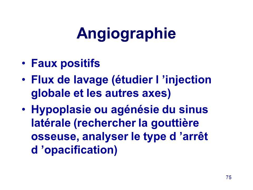 Angiographie Faux positifs