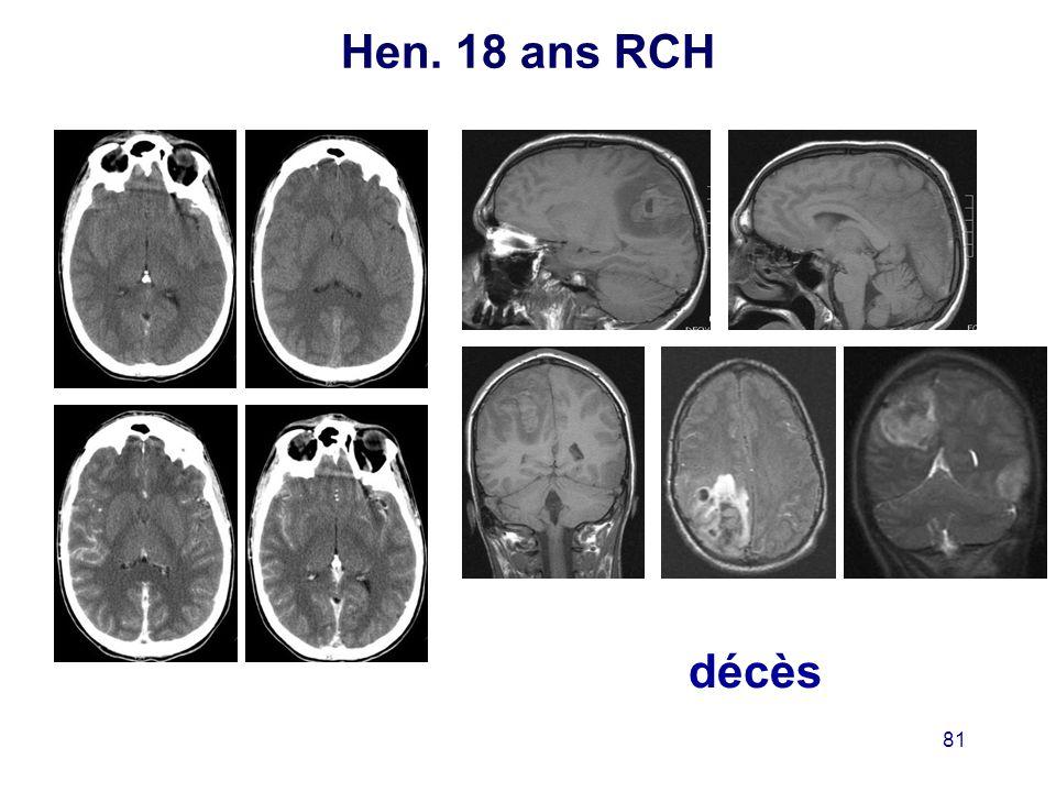 Hen. 18 ans RCH décès