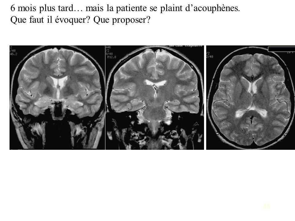 6 mois plus tard… mais la patiente se plaint d'acouphènes.