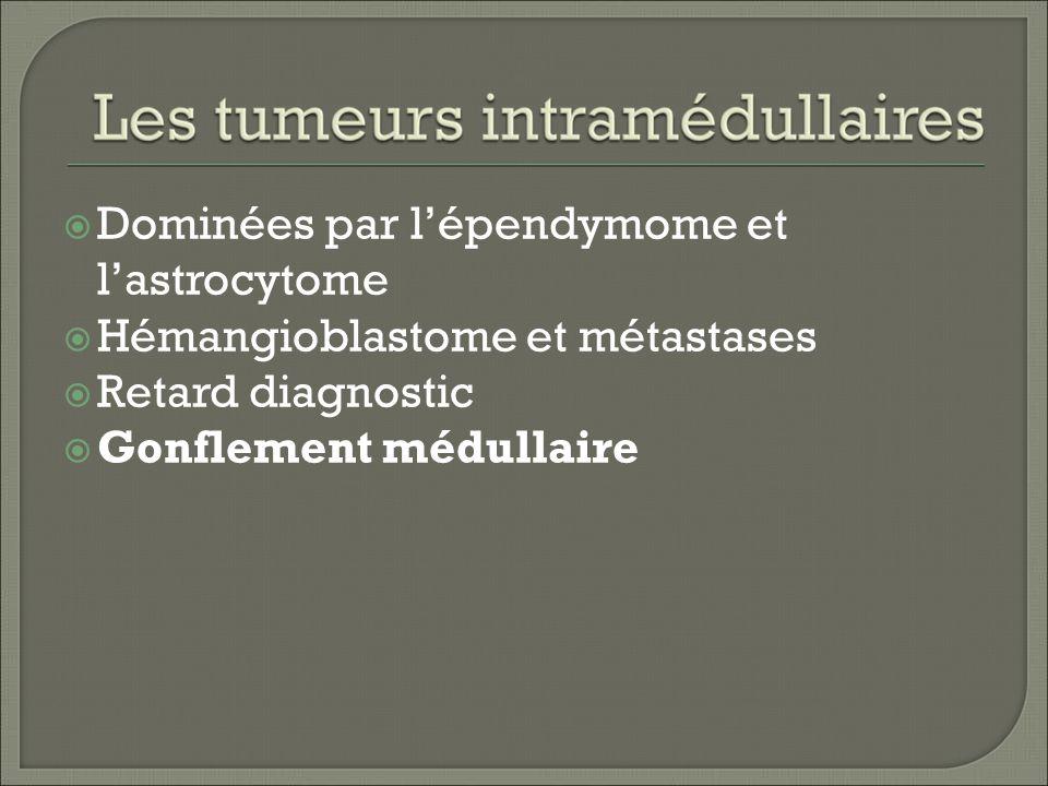 Dominées par l'épendymome et l'astrocytome