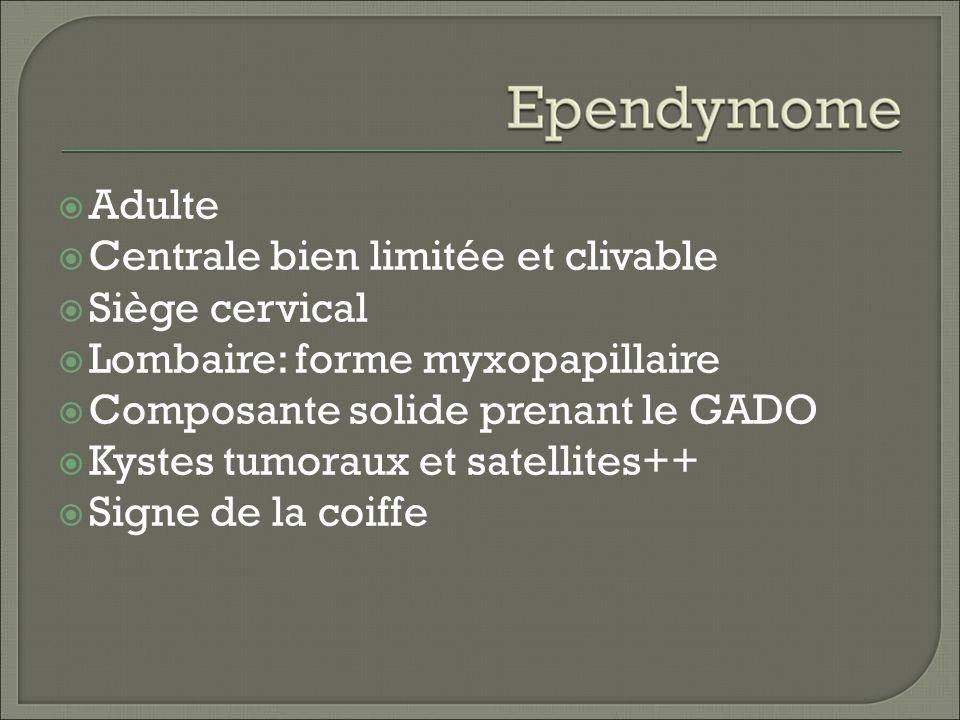 Adulte Centrale bien limitée et clivable. Siège cervical. Lombaire: forme myxopapillaire. Composante solide prenant le GADO.