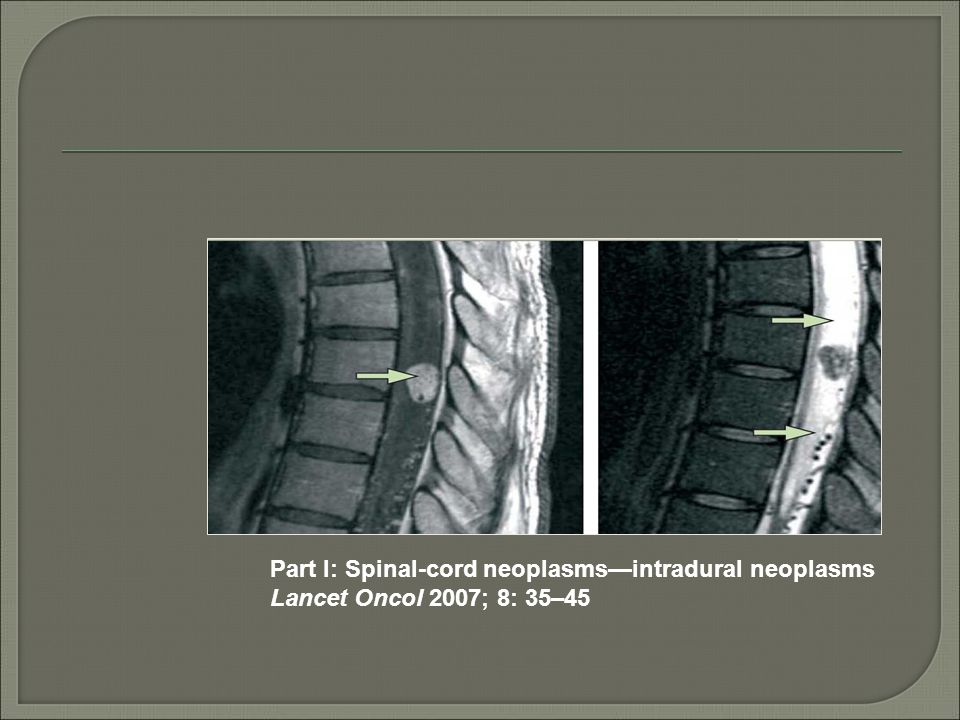 Part I: Spinal-cord neoplasms—intradural neoplasms