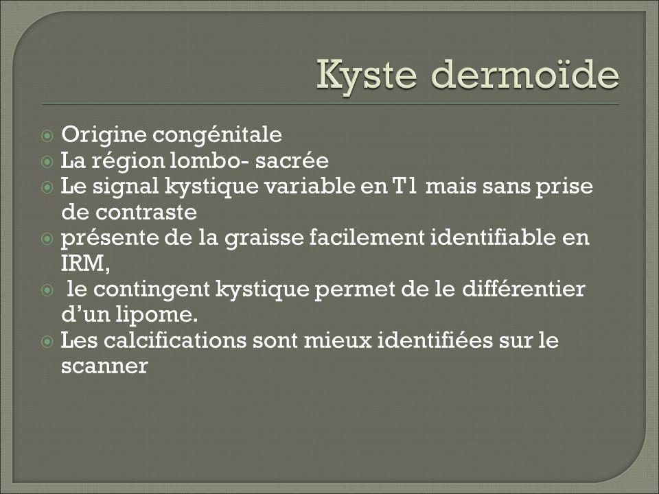 Kyste dermoïde Origine congénitale La région lombo- sacrée