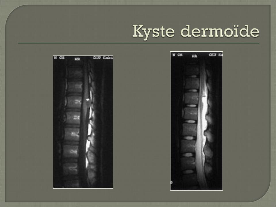 Kyste dermoïde