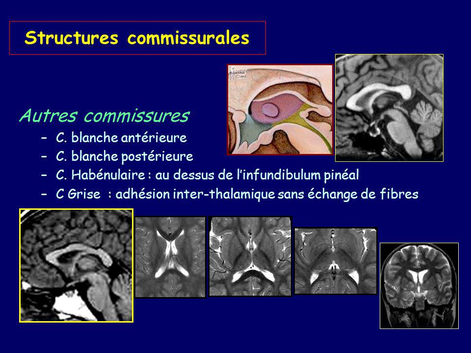 Structures commissurales