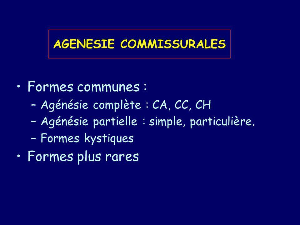 AGENESIE COMMISSURALES