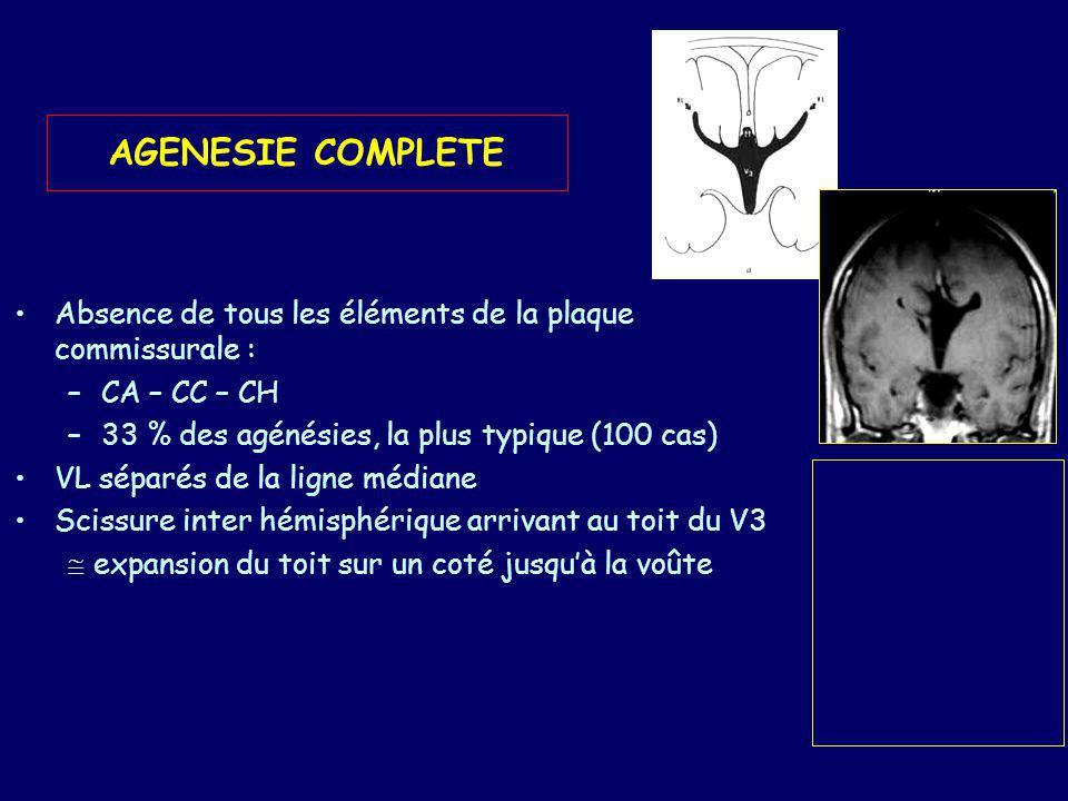 AGENESIE COMPLETE Absence de tous les éléments de la plaque commissurale : CA – CC – CH. 33 % des agénésies, la plus typique (100 cas)