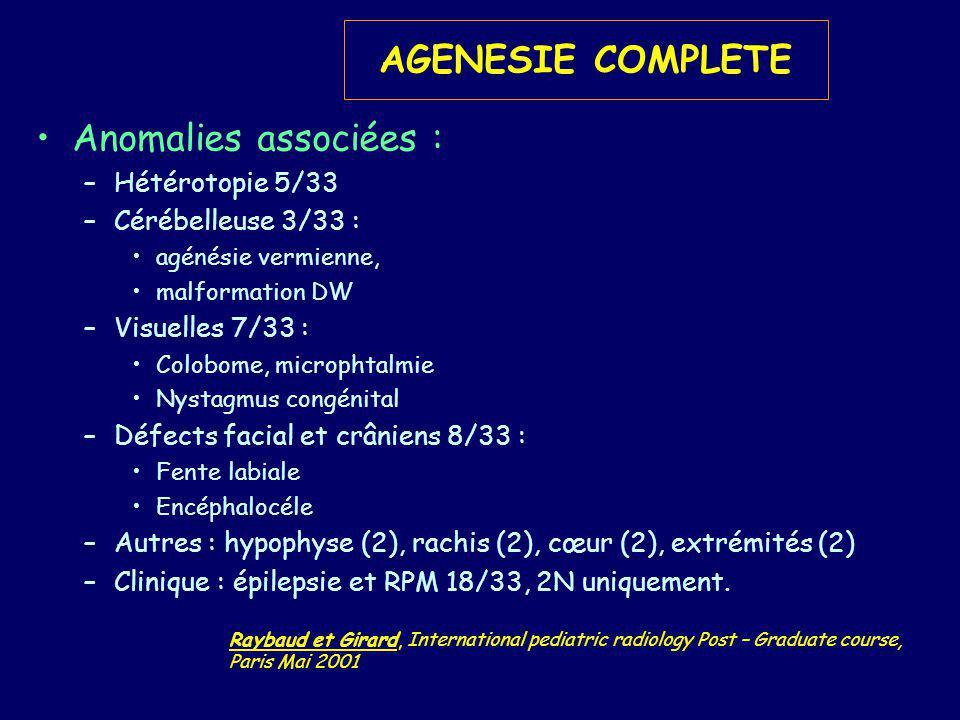 AGENESIE COMPLETE Anomalies associées : Hétérotopie 5/33