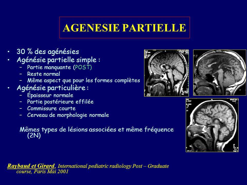 AGENESIE PARTIELLE 30 % des agénésies Agénésie partielle simple :