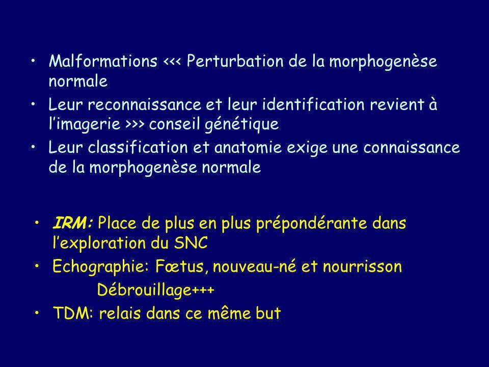Malformations <<< Perturbation de la morphogenèse normale