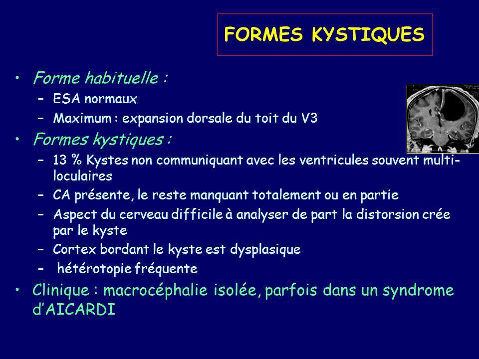 FORMES KYSTIQUES Forme habituelle : Formes kystiques :