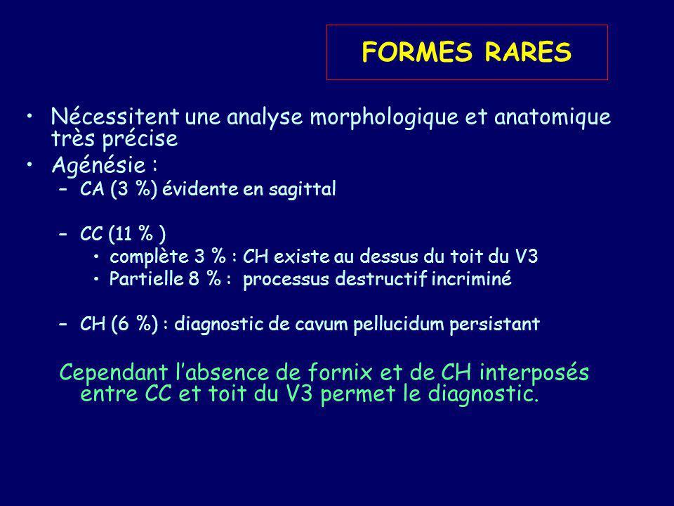 FORMES RARES Nécessitent une analyse morphologique et anatomique très précise. Agénésie : CA (3 %) évidente en sagittal.