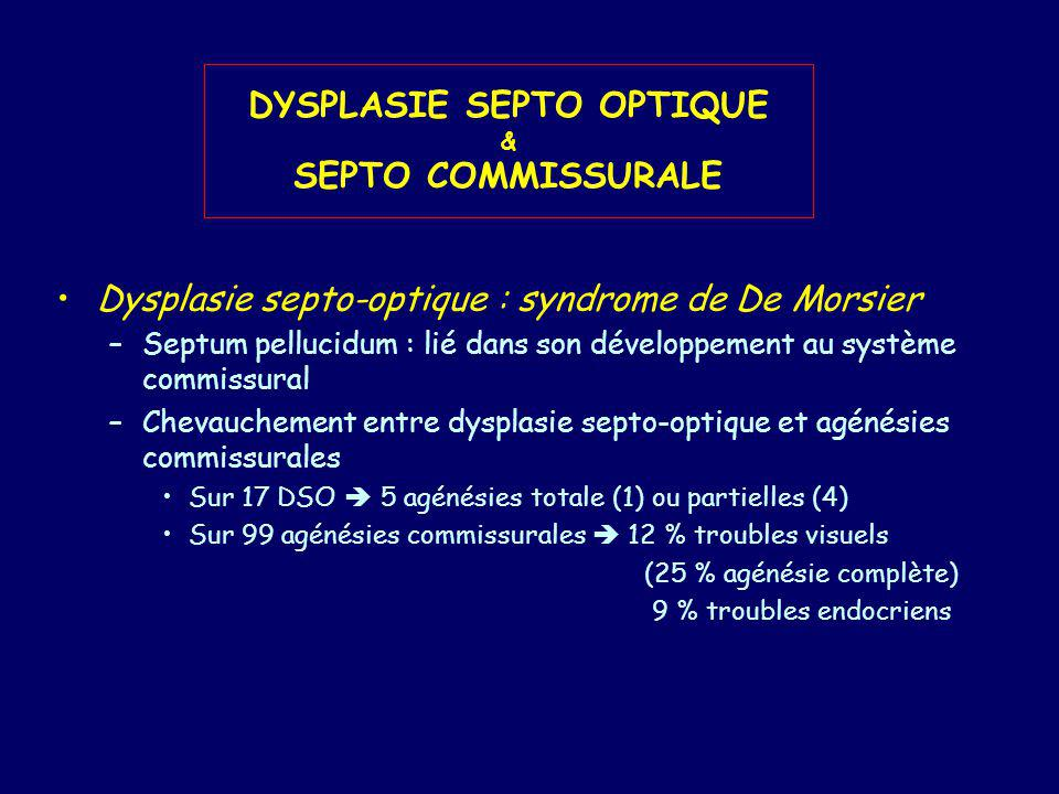 DYSPLASIE SEPTO OPTIQUE & SEPTO COMMISSURALE