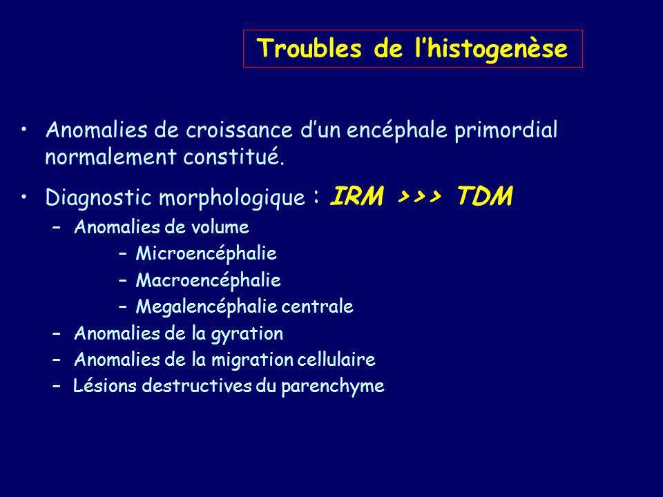 Troubles de l'histogenèse