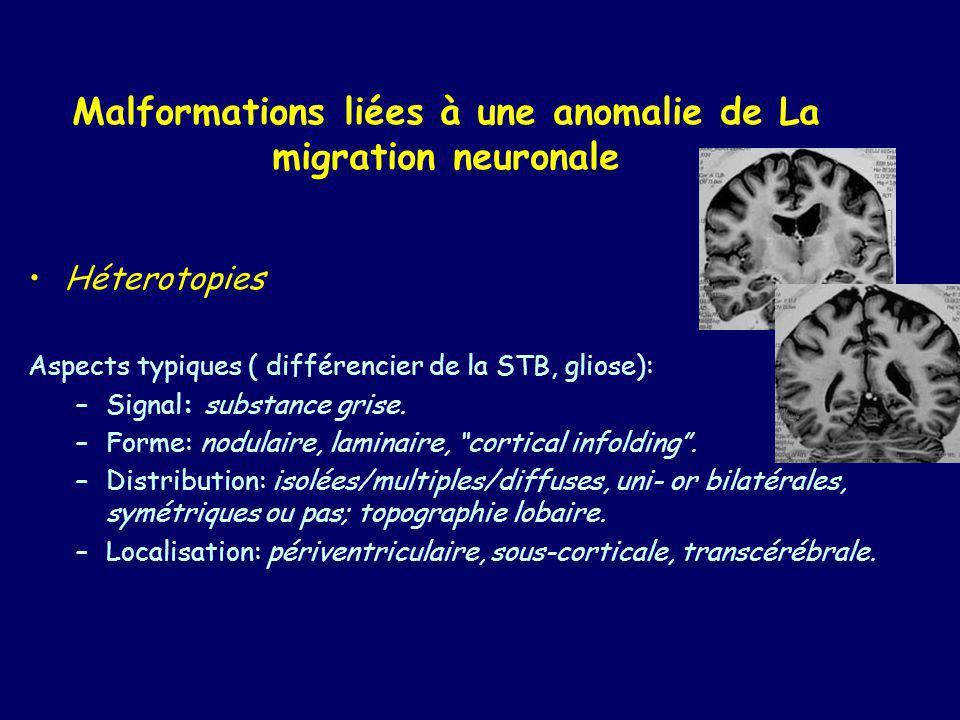 Malformations liées à une anomalie de La migration neuronale