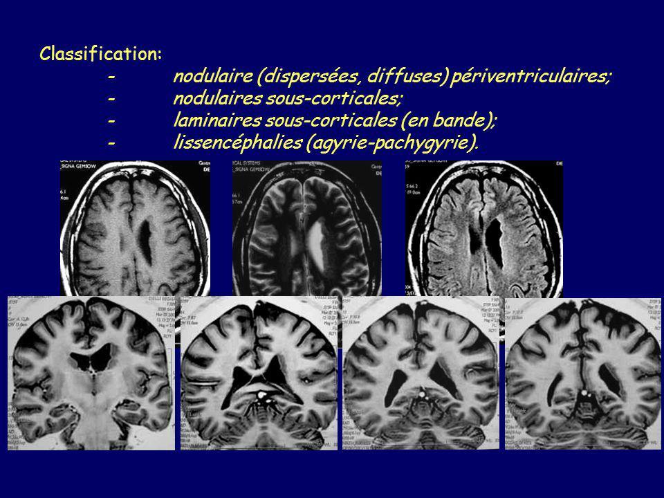 Classification: - nodulaire (dispersées, diffuses) périventriculaires; - nodulaires sous-corticales;